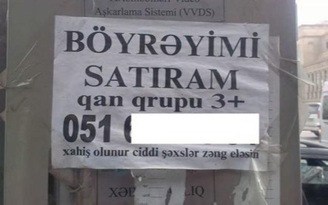 Azərbaycanda orqanlarını satışa çıxaranlara icazə var? - Video